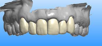 facette-porcelaine-avant-dentiste-3r.jpg