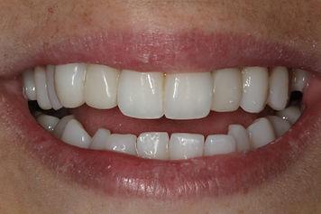 cas-1-apres-centre-dentaire-3r-reconstru