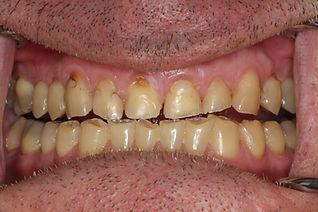 usure-dentaire-trouble-machoire-dentiste