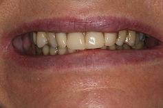 centre-dentaire-3r-cas-design-sourire-av