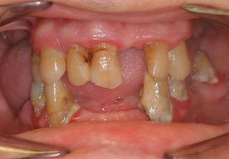 maladie parodontale active.JPG