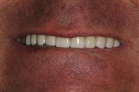 cas 1-apres-rehabilitation-sourire-centr