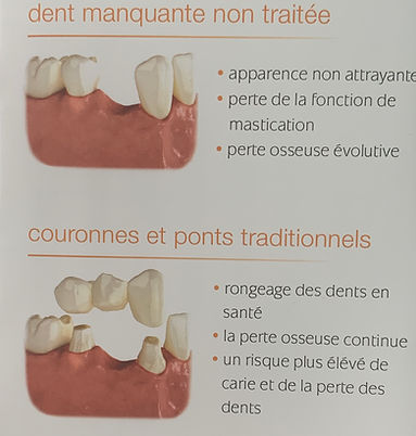 explication-pont-fixe-centre-dentaire-3r