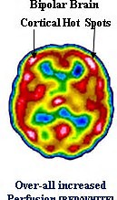 Bipolar Disorder's Complex Biology