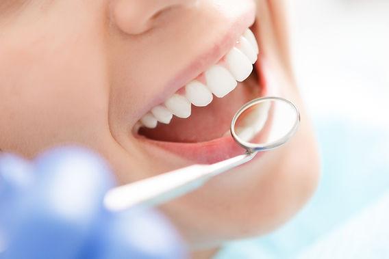 審美歯科の画像
