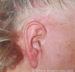 BLOG: Scar Correction & Camouflaging