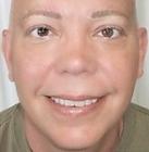 Paramedical Tattoo, Permanent Makeup