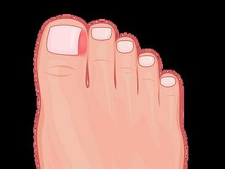 What is an ingrown toenail?