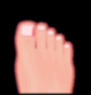 Ingrown toenail of the big toe