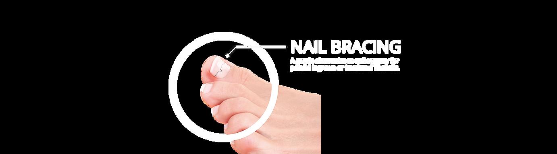 Nail bracing for ingrown toenails