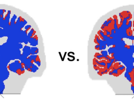 New Opportunity: Computational Modeling of Traumatic Brain Injury