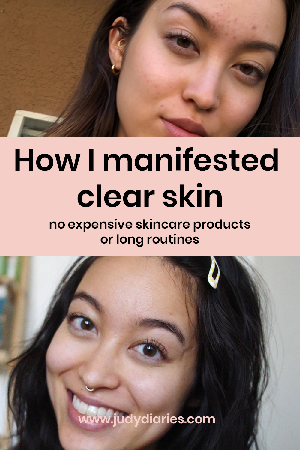 If you've tried everything to get clear skin but haven't gotten any results, why not try manifesting using the law of attraction to clear your skin