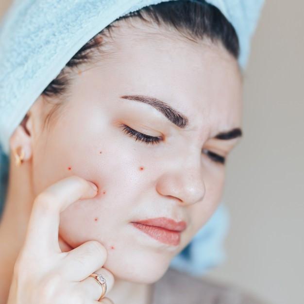 Tipos de acné | Tratamiento