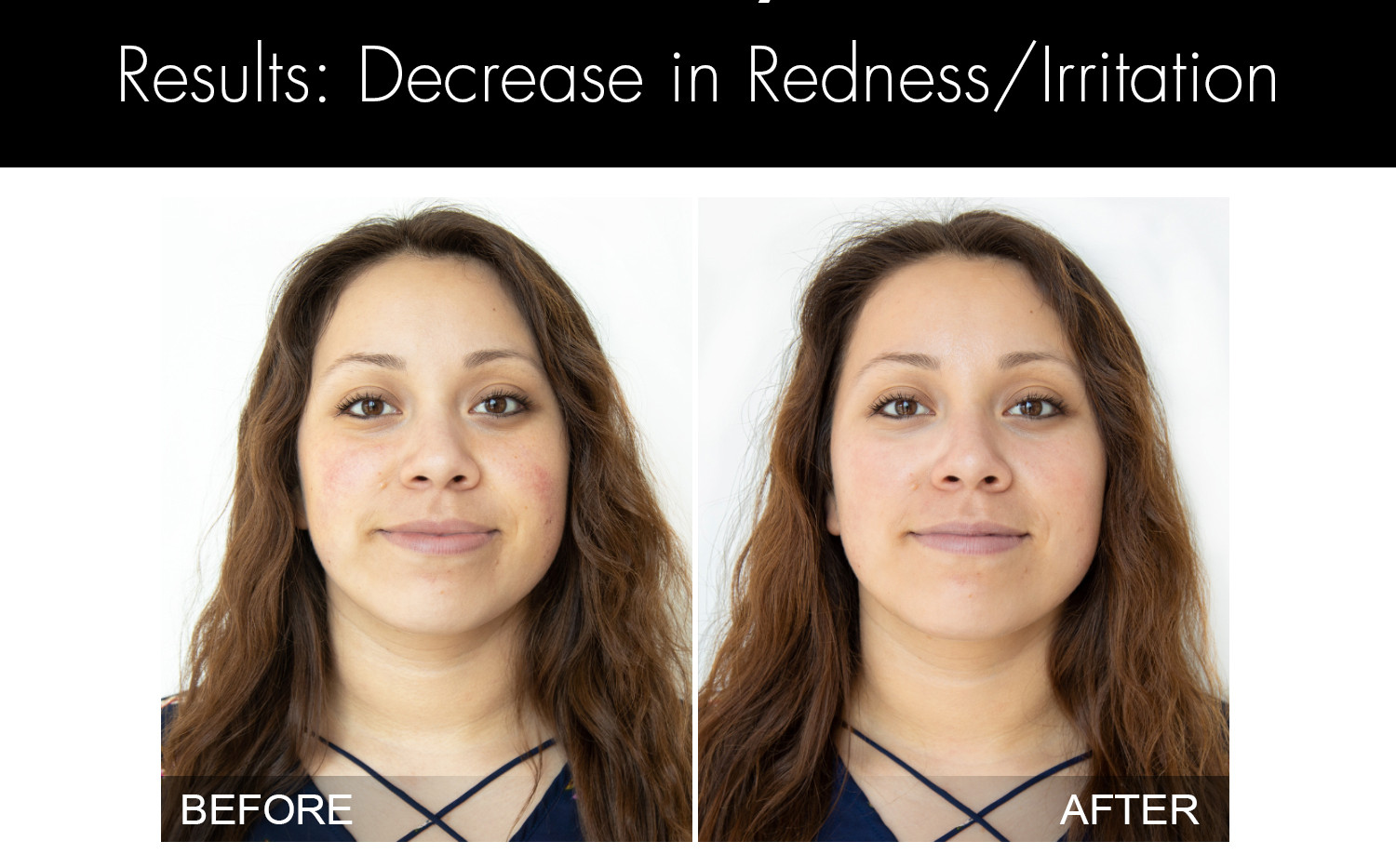 HYDRAFACIAL - Before and After Website -