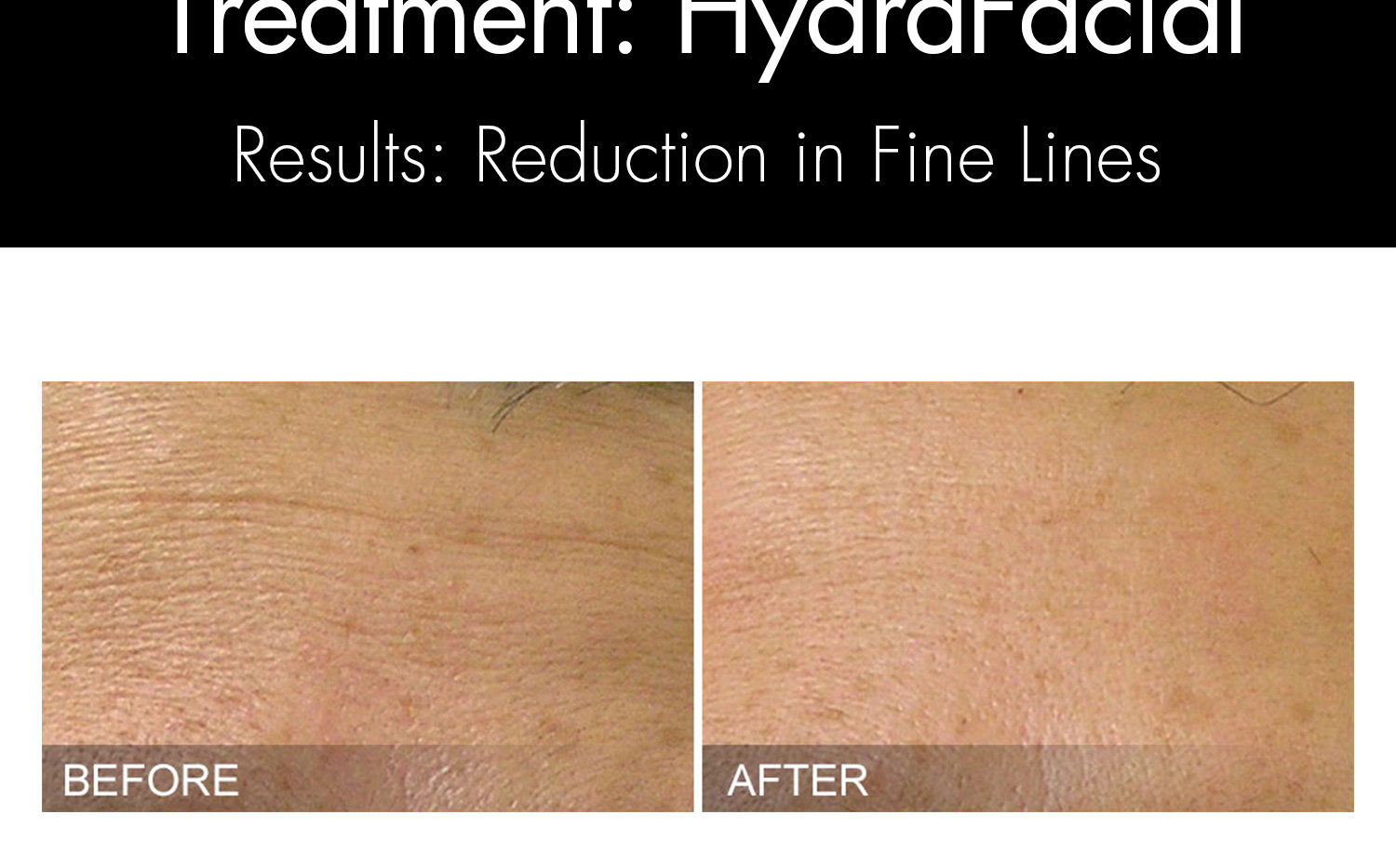 HYDRAFACIAL - Before and Afters Website