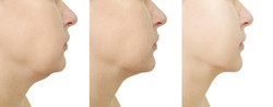 before and after neck treatment