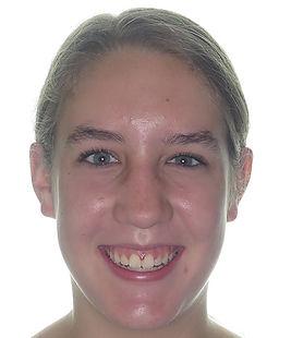 Jones, H. Final smile - adolescent brace
