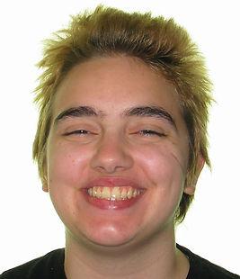 Tiefenback, R. final smile - adolescent