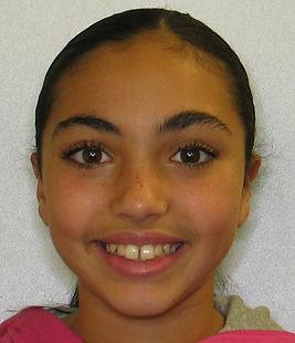 Colton, M. facial Initial - Adolescent b