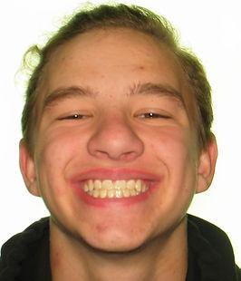 Nestman, E. Final smile - adolescent bra