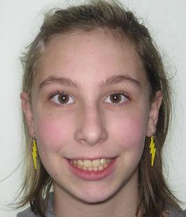 Ahl, E. Final smile - adolescent braces