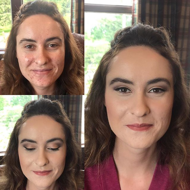 #minneapolismakeupartist #makeupbyaleah #weddingmakeup #bridesmaidmakeup #acnecoverage #beforeandaft