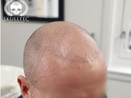 Not 1, not 2, but 5 hair transplants