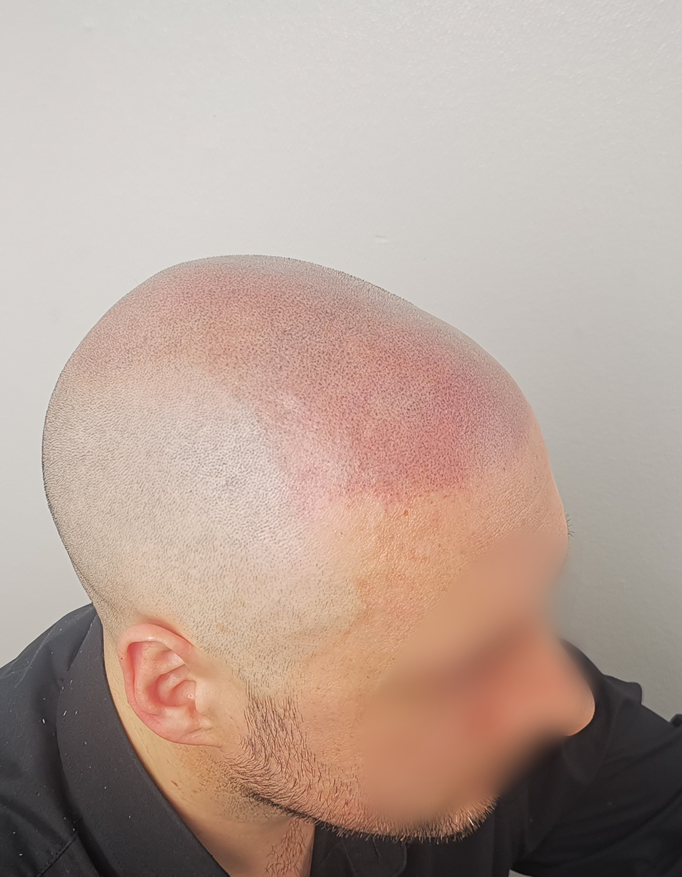 scalp micropigmentation hair tattoo