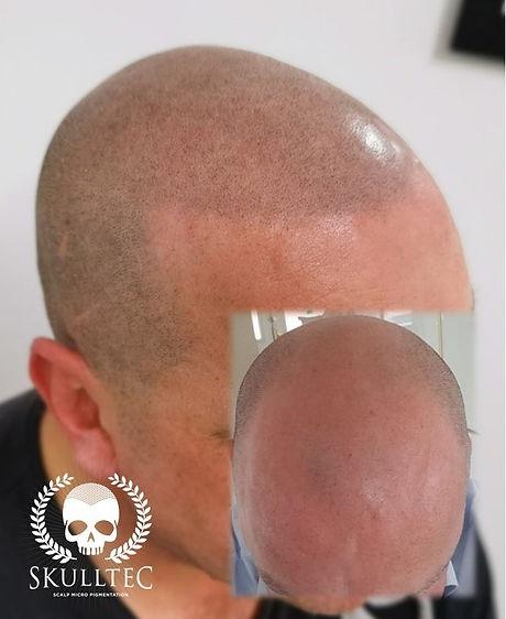 Hairline design - Scalp Micropigmentation