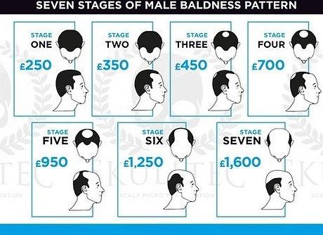 scalp micropigmentation pricing