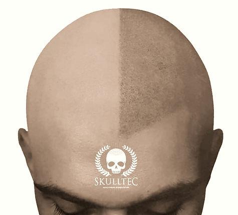 scalp micropigmentation booking