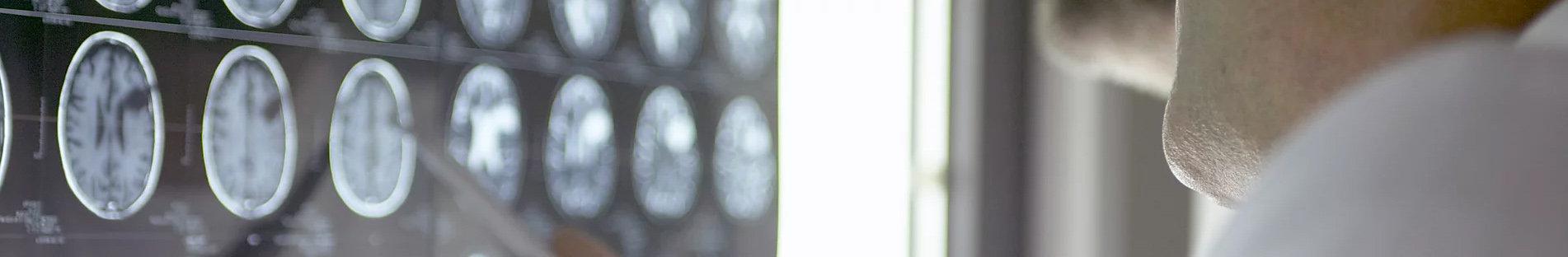 脳神経外科.jpg