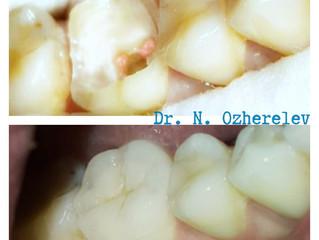 10 фактов о зубных вкладках