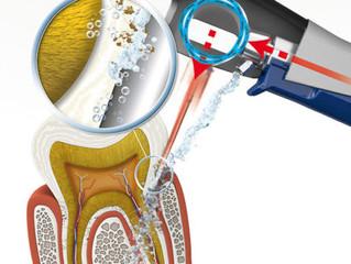 Аппарат «Вектор» - для здоровых зубов и десен 💡