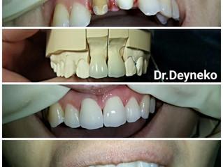 Из практики: цельнокерамические коронки на передние зубы