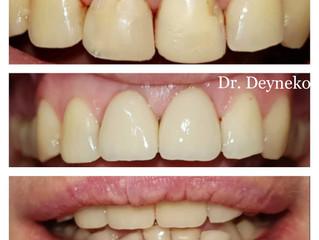 Заметны ли коронки на передних зубах?
