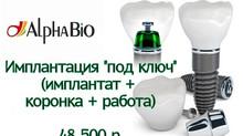 """Имплантация Alpha Bio """"под ключ"""" - 48 500 р."""