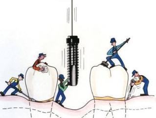 Зубным имплантатам мешает «строительный мусор»