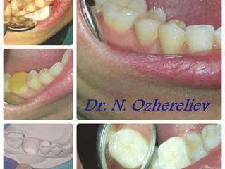 Зубная вкладка: эстетично, прочно, долговечно