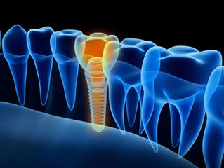 Идеальный момент для восстановления зуба — это его удаление