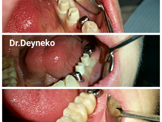 Не хватает зубов? Обращайтесь в стоматологию «Куркино»!