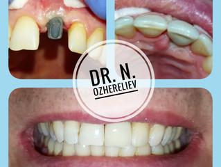 Коронка на имплантате - ни дня без зуба!