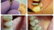 Метод лазерного спекания: из ювелирного дела в стоматологию