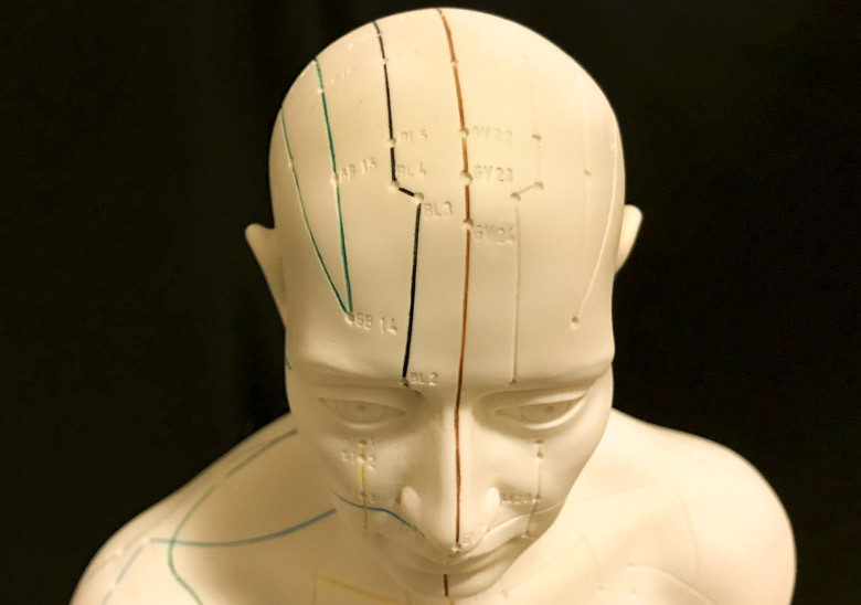 Acupuncture Aids Stroke Patient Recovery