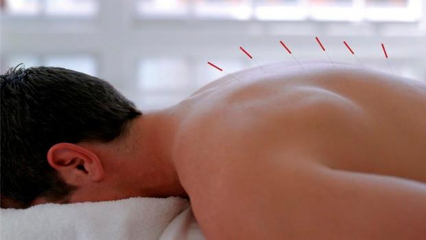 Acupuntura é eficaz no tratamento de dores crônicas, confirma pesquisa