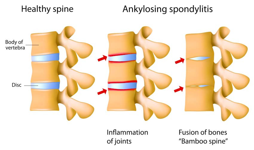 Ankylosing Spondylitis Acupuncture and Herbal Treatment