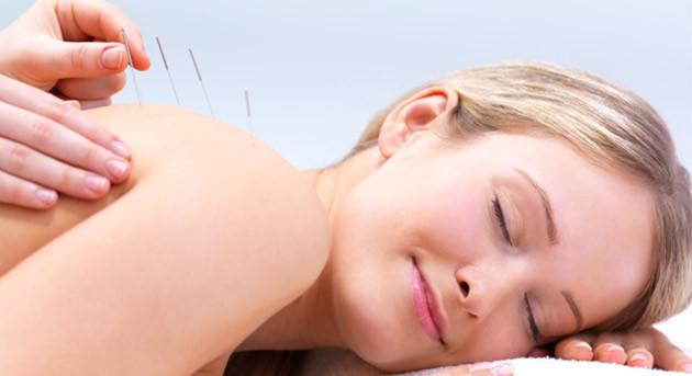 Confira os benefícios da acupuntura para saúde