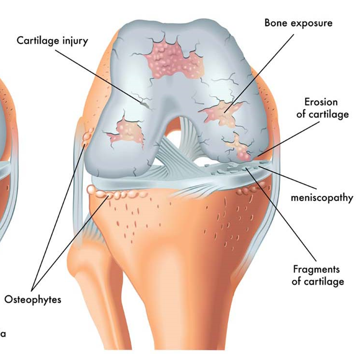 Arthritic knee anatomy