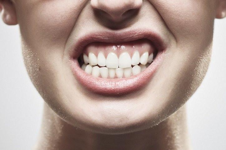 Il digrignamento dei denti