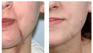 cicatriz-facial1.jpg